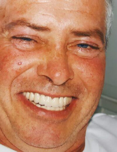 Eximus Dental 11-400x516 Home