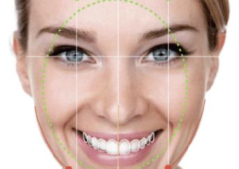 Eximus Dental teeth-reshaping-2 Home