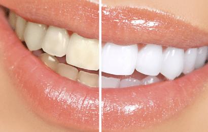 Eximus Dental teeth-whiting-1 Home